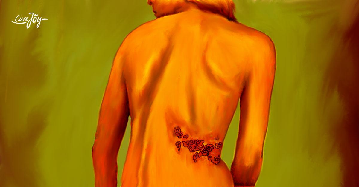 natural remedies to treat shingles