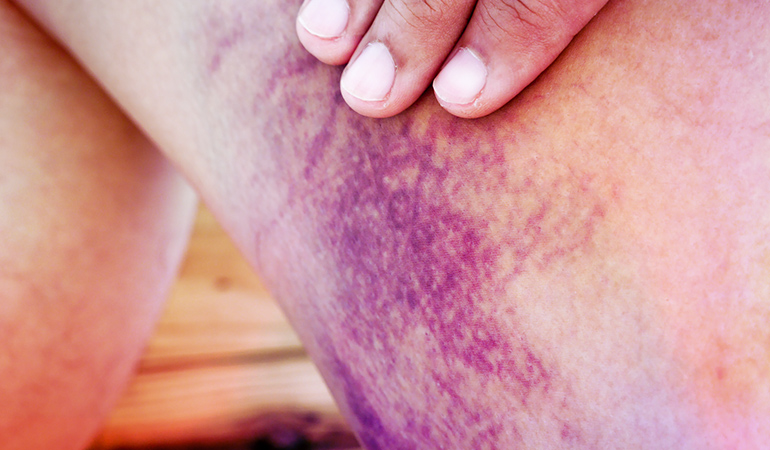 (When you have thrombocytopenia, you may not have any visible signs or symptoms until you cut yourself