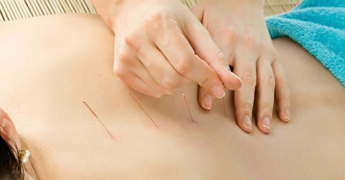 Acupuncture is a unique traditional Chinese medicine practice that focuses on holistic healthcare