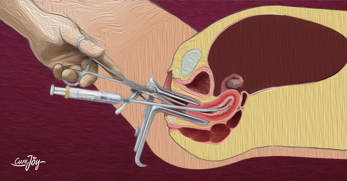 choosing-the-right-endometriosis-surgery