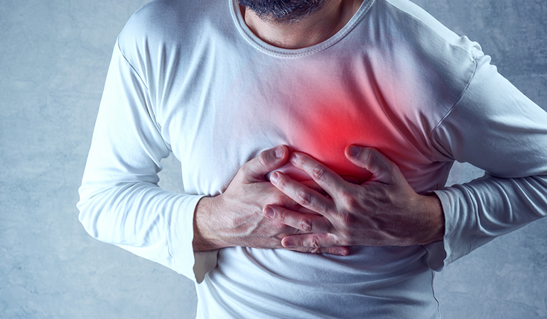 Between 70 to 80 percent of cardiac events affect males
