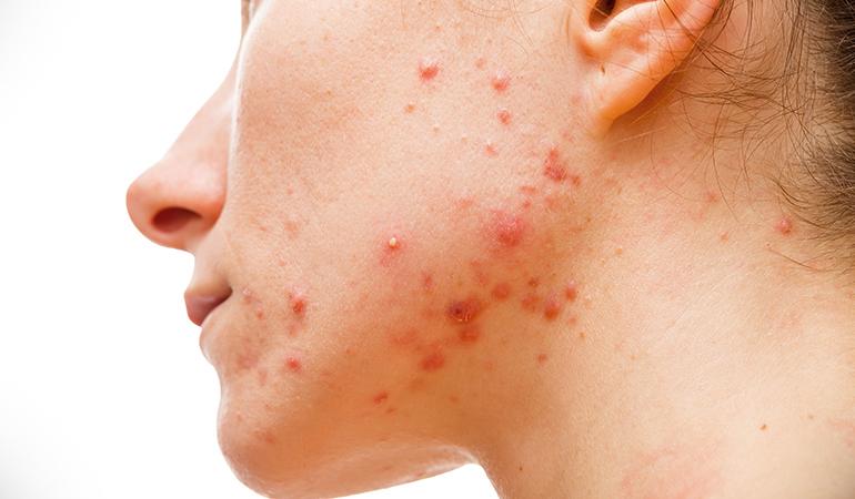 Buttermilk reduces acne.