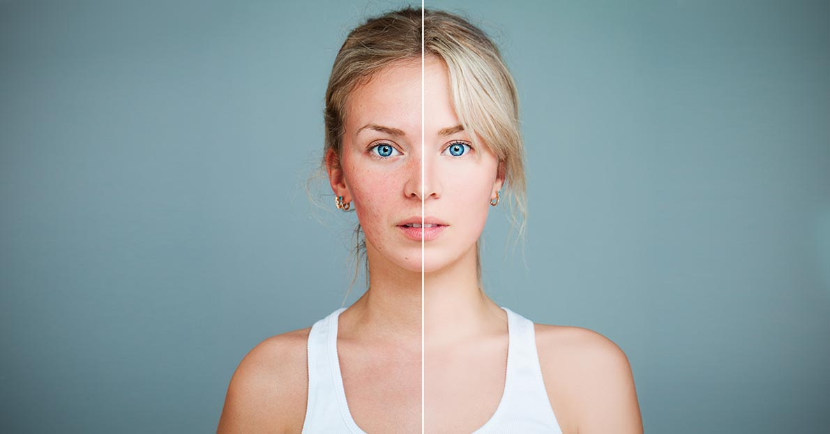 Rosacea can easily be treated with certain home remedies.