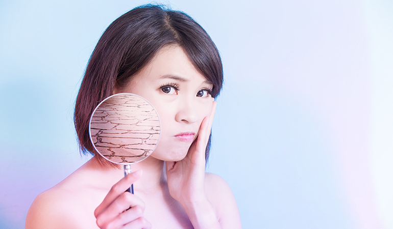 Dry Skin Can Cause Breakouts As Well