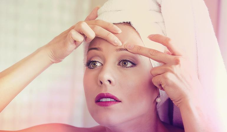 Oily Hair Can Aggravate Acne