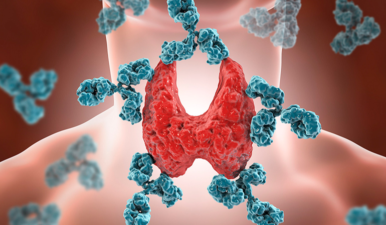 An underactive thyroid may be caused by medicines or radiation therapy, at birth, or by autoimmune diseases