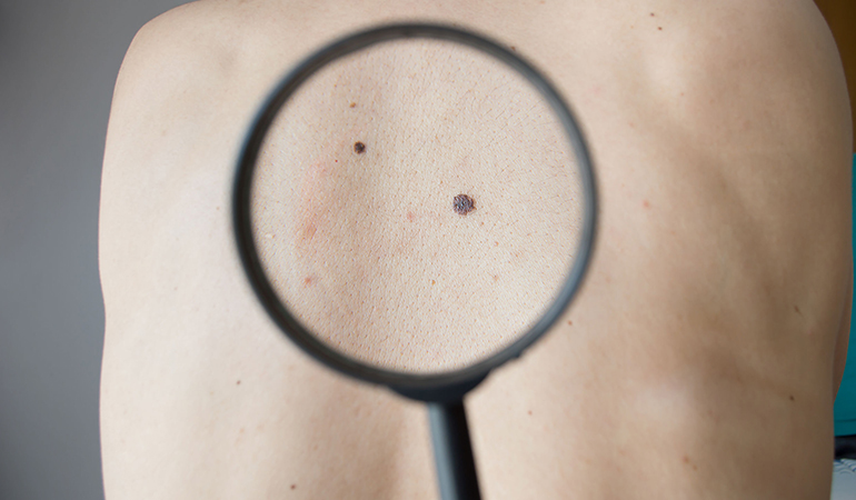 Check your skin for moles.