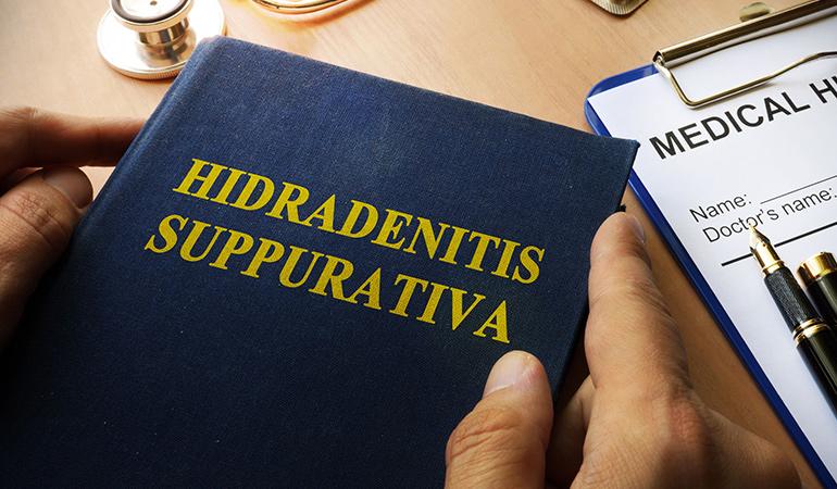 Hidradenitis suppurativa is not contagious