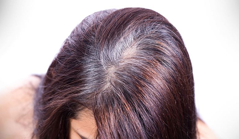 Bhringraj oil helps maintain your natural hair color preventing premature graying