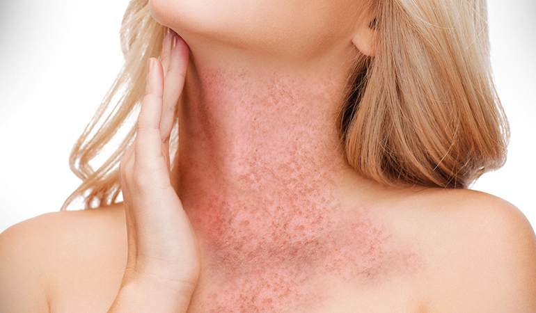 Hailey disease is a skin condition