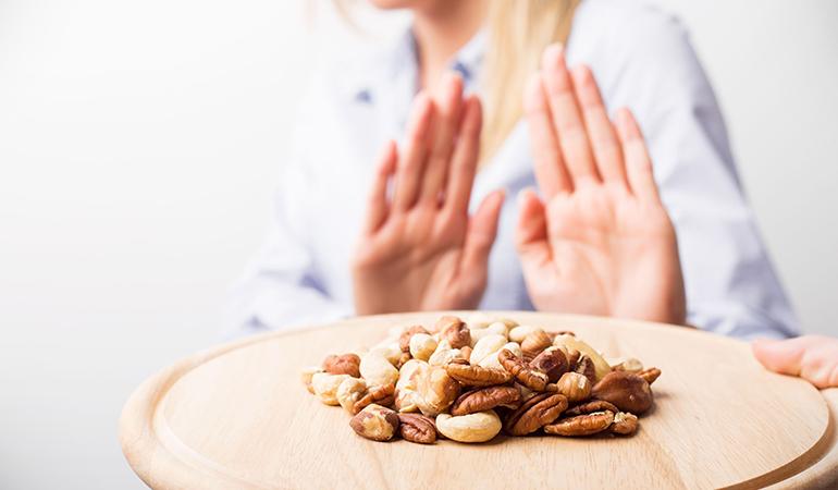 allergy to kola nuts
