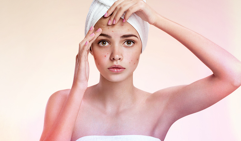 Treat acne by using natural face packs.