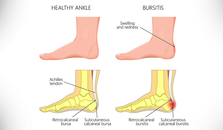 """Heel bursitis is the inflammation of a fluid-filled sac called """"bursa"""" and can cause heel pain."""