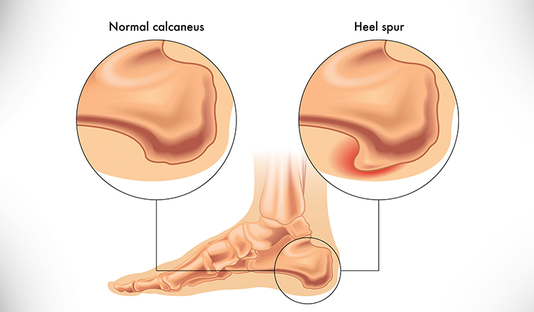 Heel spurs form on the underside of the heel and can cause pain when you take a step.