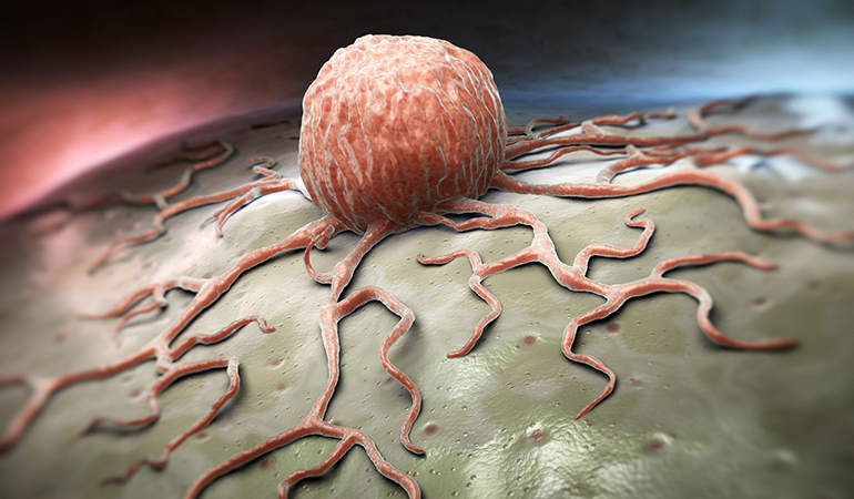Cancer cells haven't grown in stage 0.