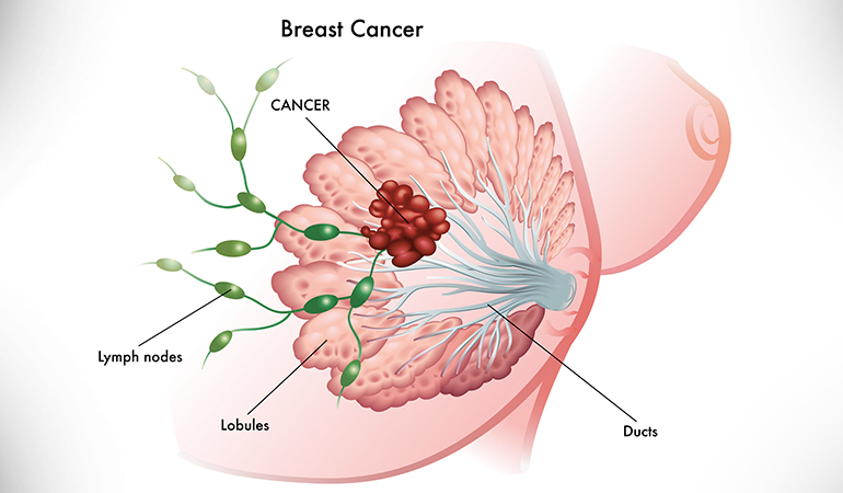 The cancerous tumor is small in stage 1.
