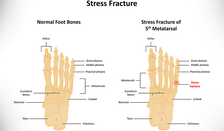 Stress fractures can make it painful to place your weight on your heel.