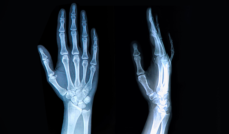 Joints might pop due to gas buildup, stuff muscles, or due to arthritis