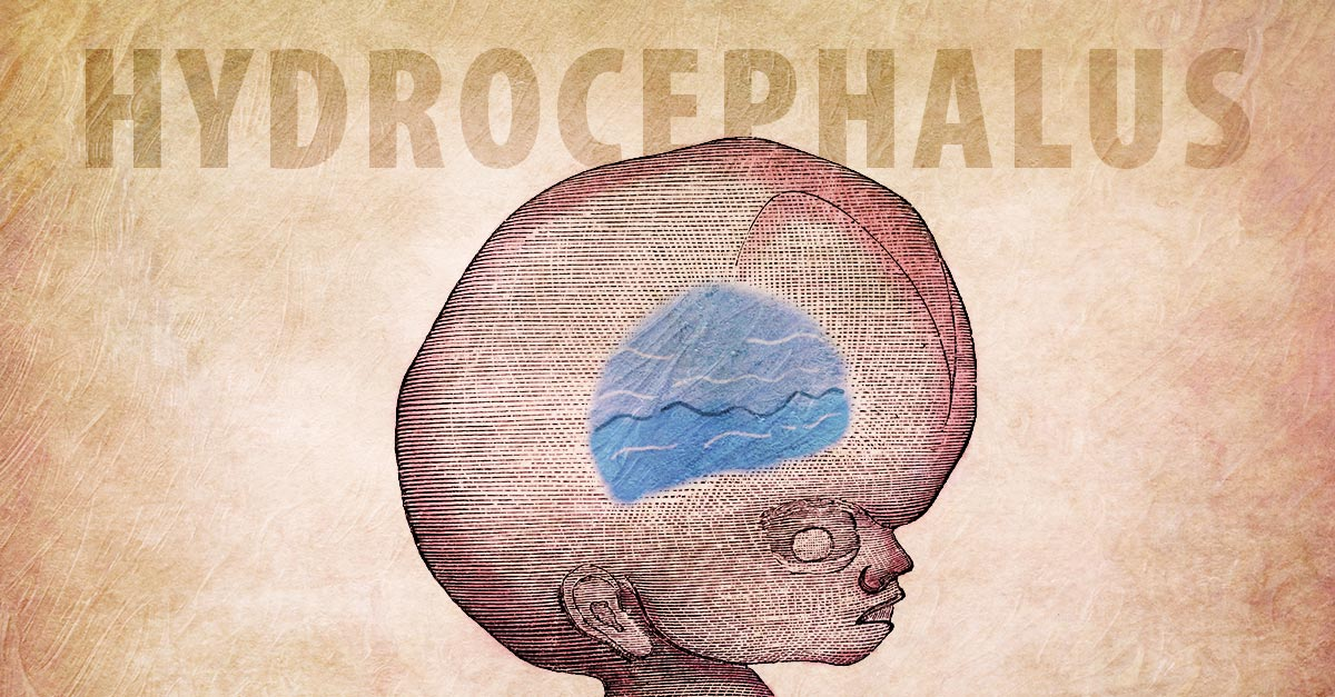 Causes of hydrocephalus