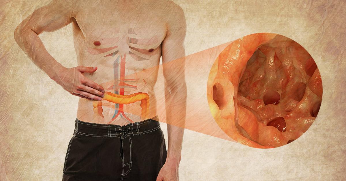 Natural remedies for diverticulitis include probiotics and high-fiber food.