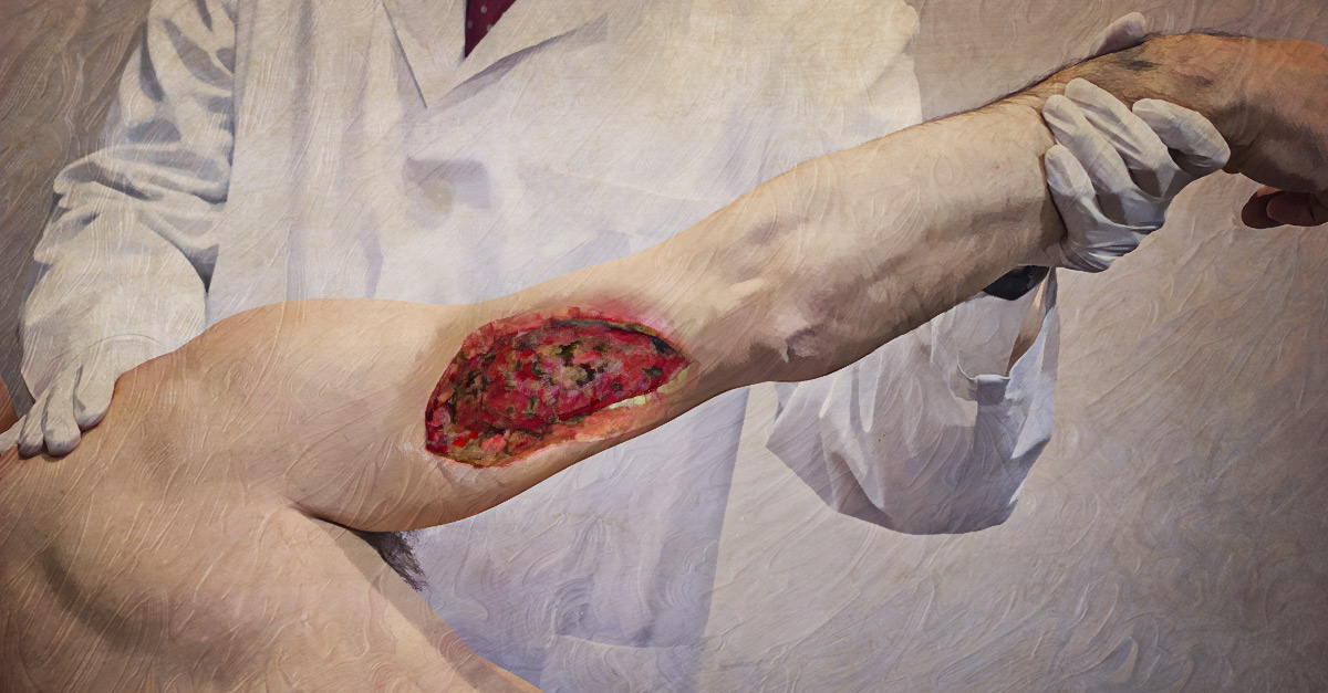 Necrotizing fascitis is a bacterial infection of the skin and underlying tissue.