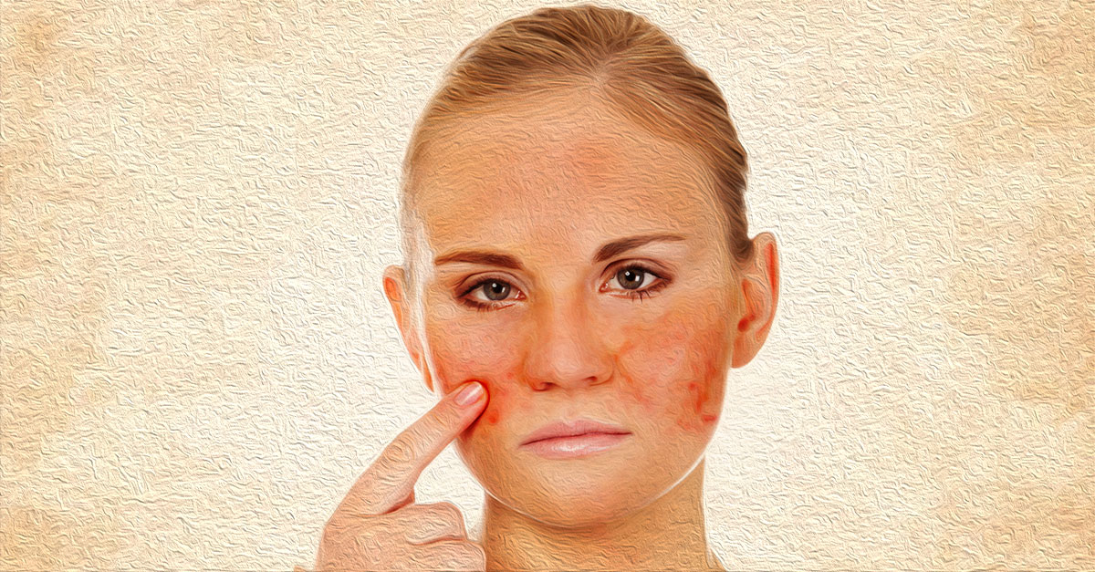 Home remedies for rosacea include turmeric paste and aloe vera gel.